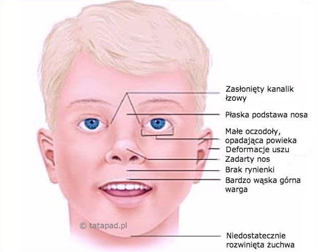 Na obrazku zaznaczono zmiany, które na twarzy Dziecka mogą powstać wskutek picia przez matkę alkoholu w ciąży